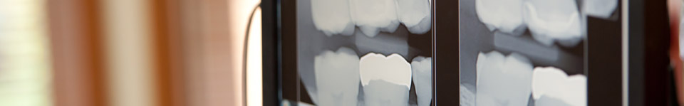 Implants are a long term solution for lost teeth